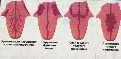 http://www.kunpendelek.ru/content/diagnostic/lang-diagnostic/12.jpg