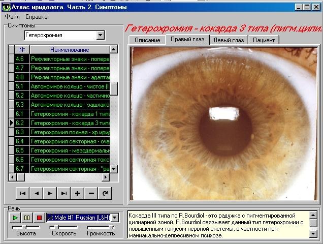 иридодиагностика программа скачать бесплатно - фото 7